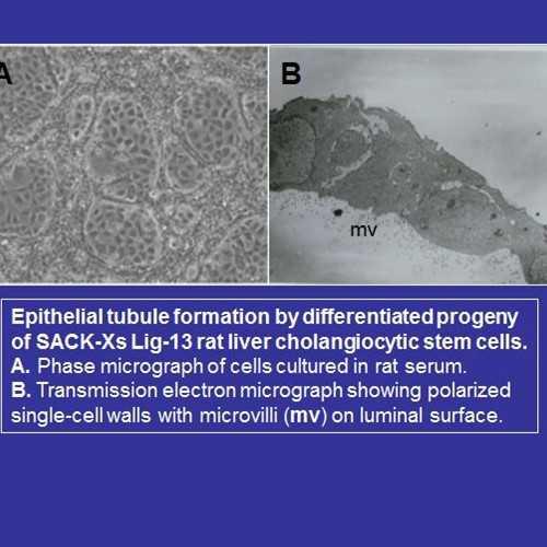 SACK-Xs Lig-13 clonal adult rat cholangiocytic stem cells